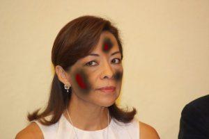Josefina con quemaduras de Tercer Grado